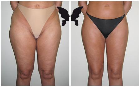 Липосакция бёдер, фото до и после 10 месяцев