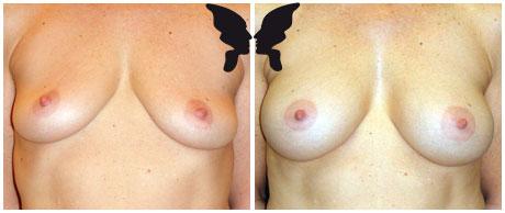 Увеличивающая маммопластика, фото до и после 14 месяцев