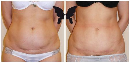 Абдоминопластика, фото до и после 6-ти месяцев