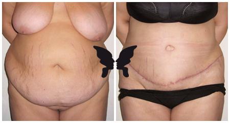 Абдоминопластика, фото до и после 2,5 месяцев