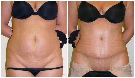 Абдоминопластика, фото до и после 3-х недель