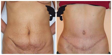 Абдоминопластика, фото до и после 5-ми месяцев