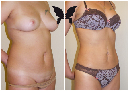 Липосакция живота, фото до и после 3 месяцев