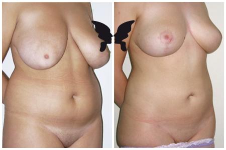 Липосакция живота (и мастопексия), фото до и после 6 месяцев