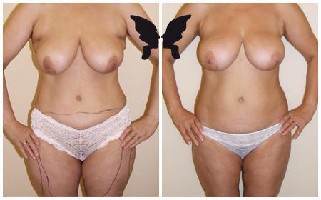 Липосакция бёдер и подмышечных областей, фото до и после 11 месяцев