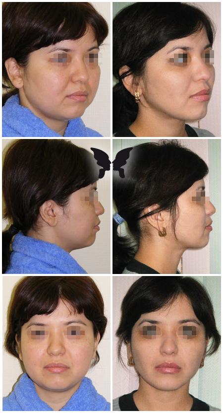 Липосакция лица, фото до и после 2-х месяцев