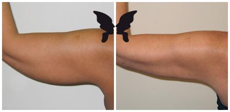 Результаты липосакции плеча
