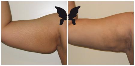 Липосакция плеча, фото до и после 1 месяца
