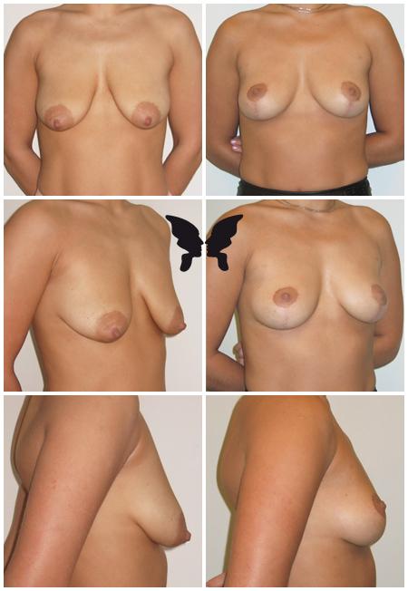 Мастопексия (подтяжка груди), фото до и после 5 месяцев