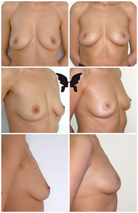 Мастопексия (подтяжка груди), фото до и после 1 года и 2 месяцев