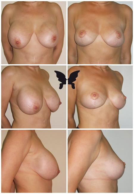 Редукция груди, фото до и после 3-х недель
