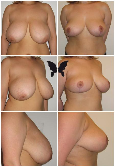 Редукция груди, фото до и после 3-х месяцев