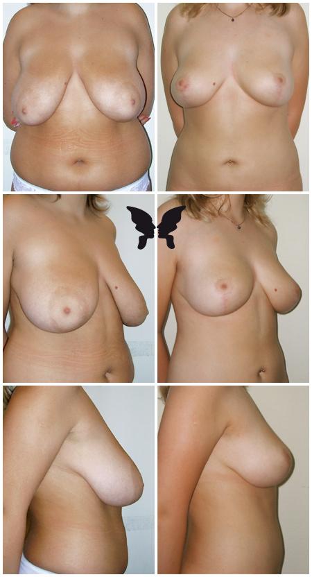 Редукция груди, фото до и после 6-ти месяцев