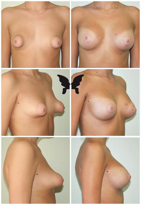 Увеличивающая маммопластика, фото до и после