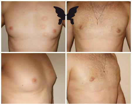 Лечение гинекомастии у мужчин. Фото до и после