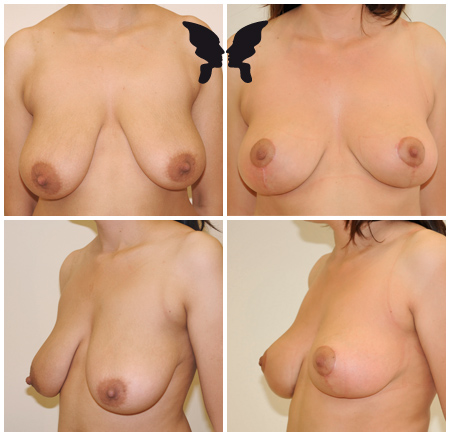Мастопексия (подтяжка груди), фото до и после