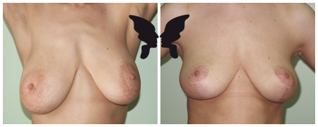 Результаты мастопексии, фото до и после