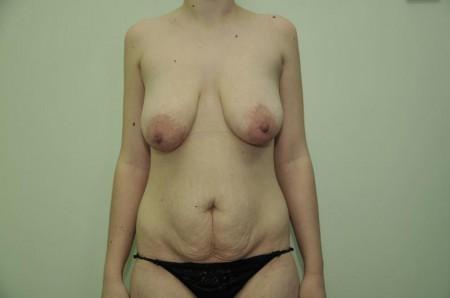 Форма живота от типа телосложения