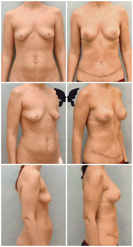Мастопексия (подтяжка груди) и абдоминопластика, фото до и после