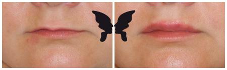 Увеличение губ, фото до и после