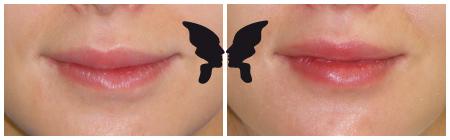Увеличение, фото губ до и после