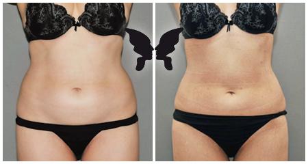 Липосакция, фото до и после