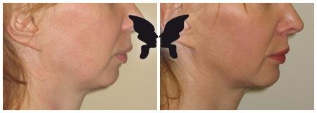 Результаты операции по увеличению подбородка, фото до и после