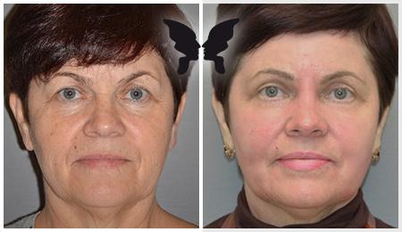 Результаты глубокой лазерной шлифовки кожи лица на аппарате Ultra Pulse