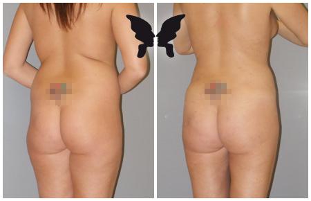 Липофилинг ягодиц, фото до и после 1,5 месяцев