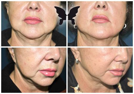 Коррекция овала лица с использованием насадки Face tite. Фото до и после 4-х недель после 1 процедуры.