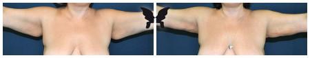 Результаты радиочастотной липосакции рук с эффектом подтяжки кожи. <br>Фото до и через 5 недель после операции. Доктор Шептий О.В.