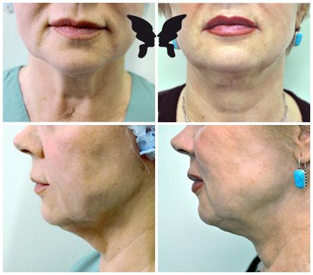 Удаление избытков жира и подтяжка кожи в подбородочной области с использованием насадки Neck tite. Фото до и после 2-х месяцев после 1 процедуры.