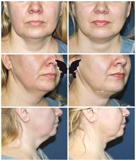 Удаление избытков жира в подбородочной области с использованием насадки Face tite. Фото до и после 1 недели после 1 процедуры.