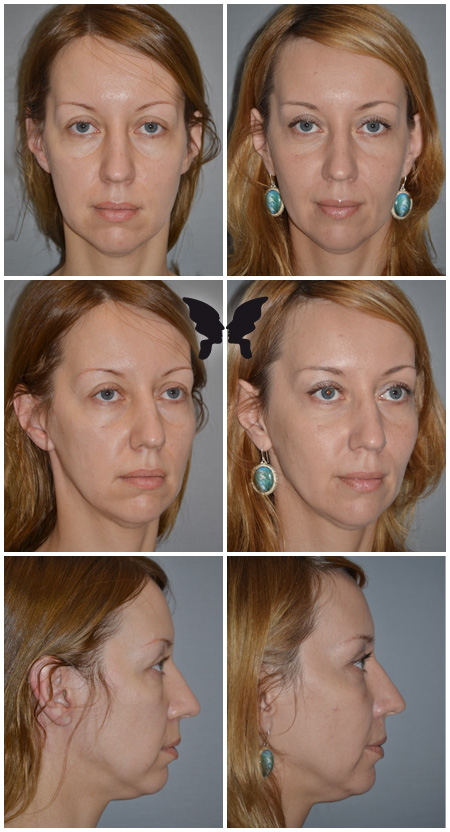 Подтяжка лица, фото до и после 1 года 4 месяцев