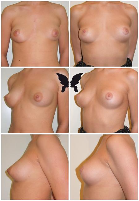 Липофилинг груди, фото до и после 5-ти месяцев