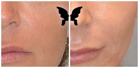 Результаты после эндоскопической подтяжки средней зоны лица и лазерной фракционной шлифовки лица на аппарате UltraPulse Encore. Фото до и через 3 недели после процедуры.