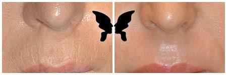 Результаты глубокой лазерной фракционной шлифовки кожи по поводу глубоких морщин в области носогубного треугольника.  Фото до и через 1,5 месяца после процедуры
