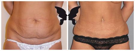Абдоминопластика, фото до и после 1 года 5 месяцев