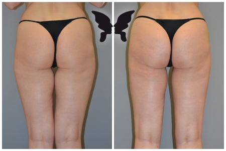 Липофилинг ягодиц, фото до и после 3-x месяцев