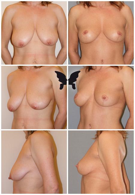Мастопексия (подтяжка груди), фото до и после 11 месяцев