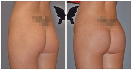 Глютеопластика, фото до и после 1,5 месяцев