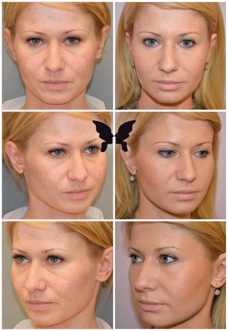 Результаты глубокой лазерной шлифовки кожи лица на аппарате Ultra Pulse через 2 месяца и через год после операции