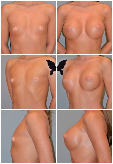 Увеличивающая маммопластика, фото до и после 3 месяцев