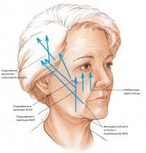 Рис.2. Векторы смещения тканей и точки фиксации лицевой маски