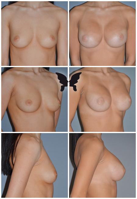 Увеличивающая маммопластика, фото до и после 3-х месяцев