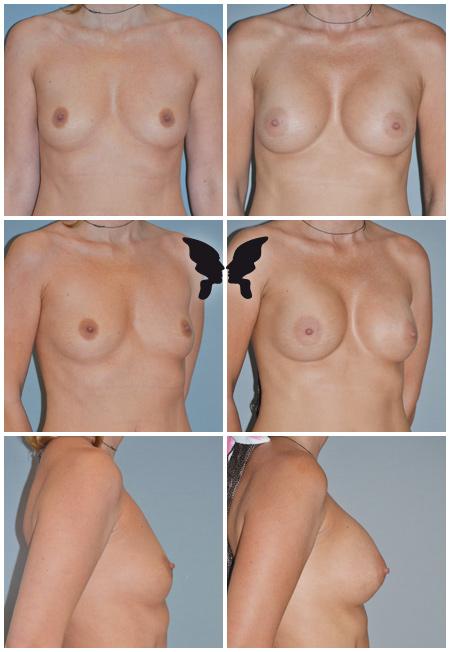 Увеличивающая маммопластика, фото до и после 4,5 месяцев