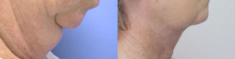 Ращепление жира и подтяжка кожи с помощью липолитиков до и после