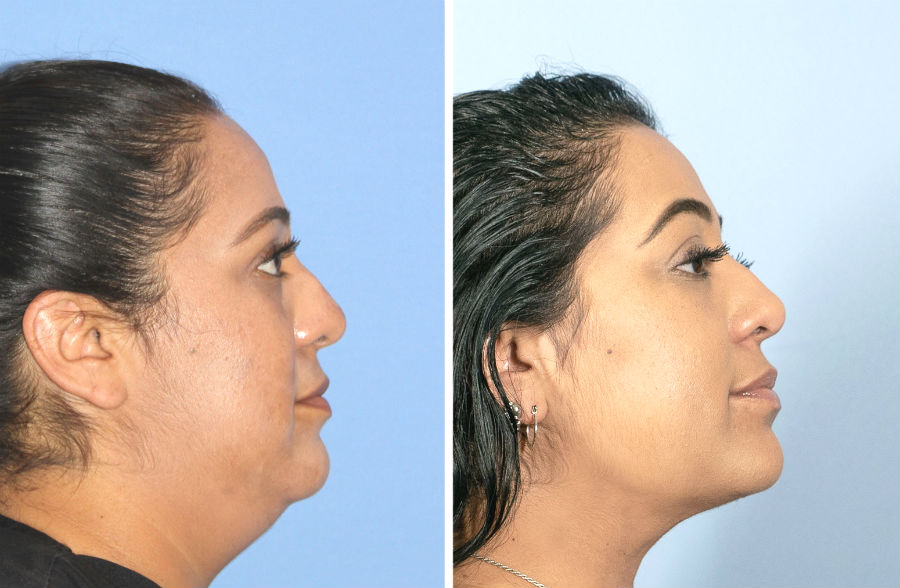 Хирургическая подтяжка кожи до и после