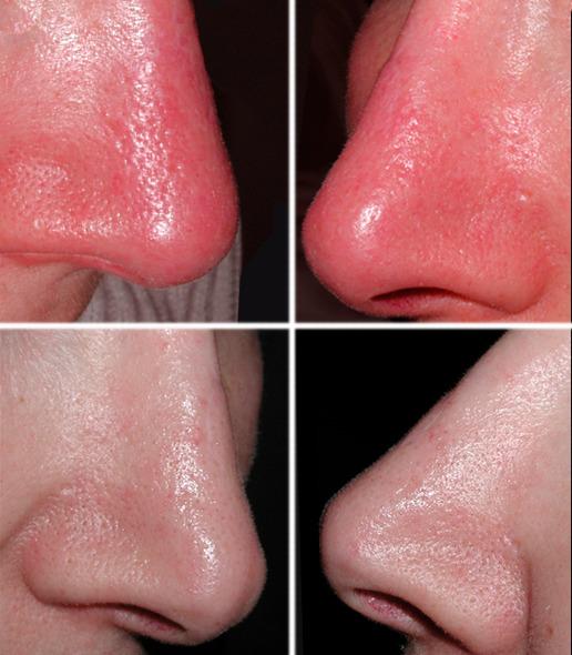 Удаление сосудов при обморожении носа