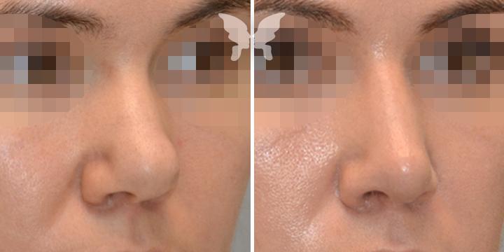 Сузить кончик носа ринопластика
